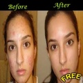 Get Rid Of Acne mobile app for free download