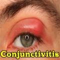 Conjunctivitis mobile app for free download