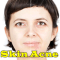 Skin Acne mobile app for free download
