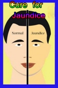 Cure for Jaundice mobile app for free download